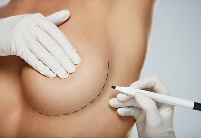 Silikonlu Göğüs Nasıl Anlaşılır ?